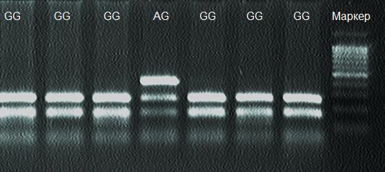 word image 798 Разработка модели интеграции результатов генетической экспертизы национальных племенных ресурсов с мировыми информационными ресурсами геномных данных в контексте задачи создания отечественной системы геномной оценки сельскохозяйственных животных