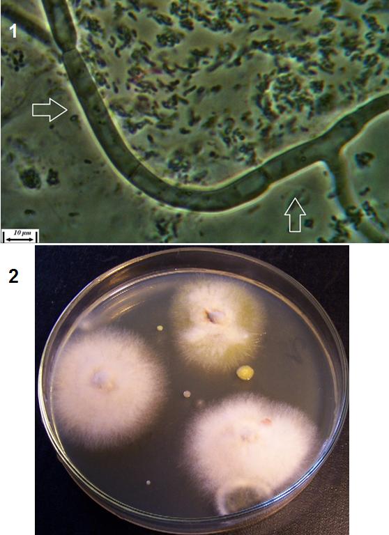 word image 400 Разработка биопрепарата для защиты сои от грибных болезней в условиях Сибири