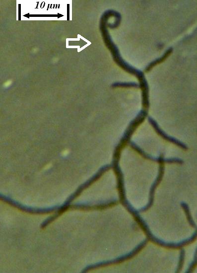 word image 438 Разработка биопрепарата для защиты сои от грибных болезней в условиях Сибири