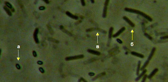 word image 449 Разработка биопрепарата для защиты сои от грибных болезней в условиях Сибири